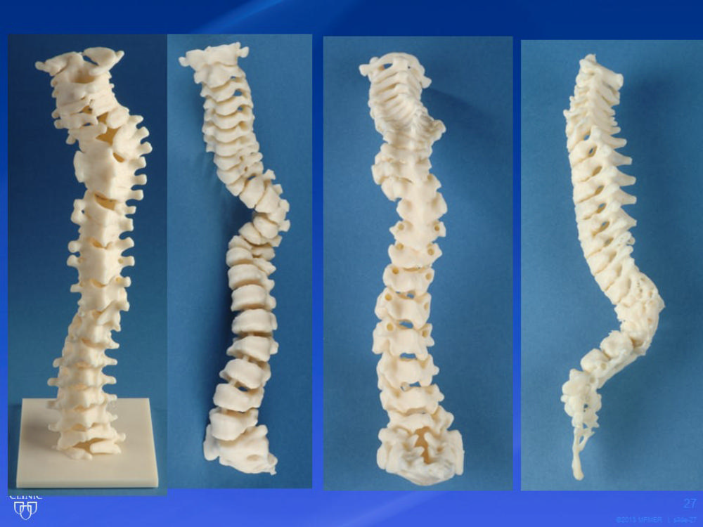 3-D Printing Takes Imaging to the Next Dimension