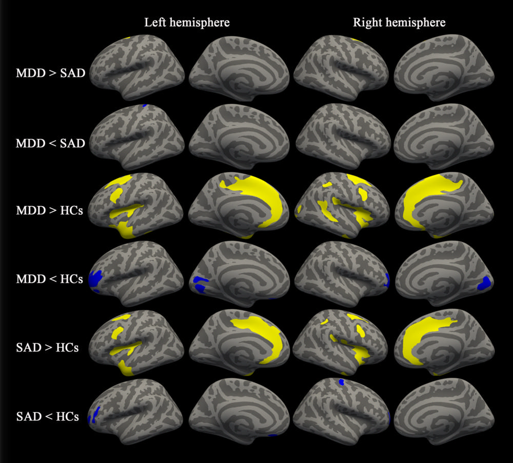 MRI Uncovers Brain Abnormalities in People with Depression ...
