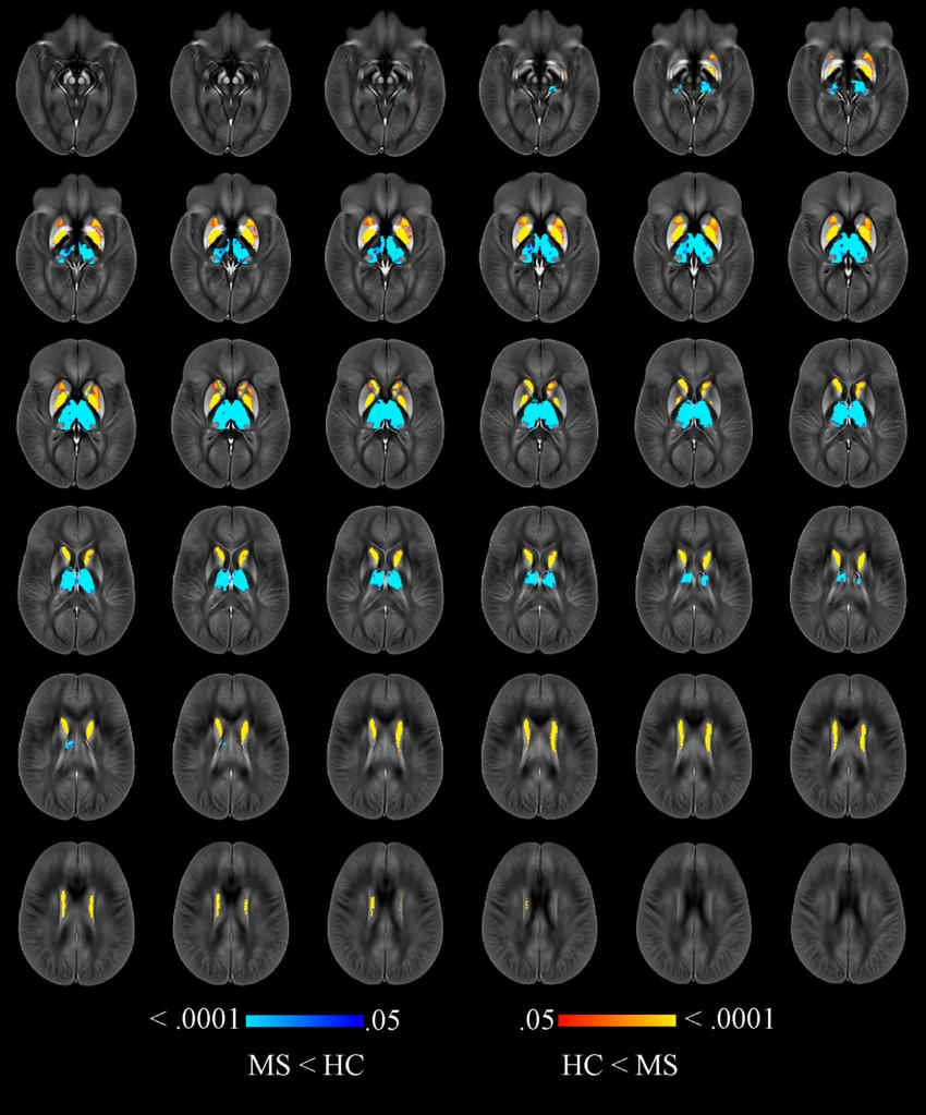 Brain Iron Levels May Predict Multiple Sclerosis Disabilities