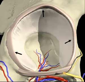 Hip Cartilage-1st view