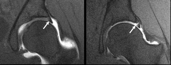 Rsna Press Release Hip Cartilage Is Newest Achilles Heel