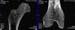 Benson2_02_Trabecular_detail