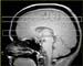 Adult bipolar MRSI study