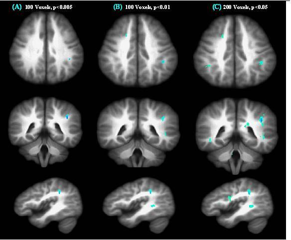 Schizophrenia Brain Vs Normal Brain Rsna press release: imaging shows ...
