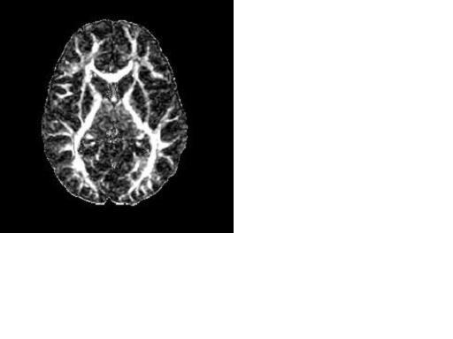 rsna press release  imaging shows similarities in brains of marijuana smokers  schizophrenics