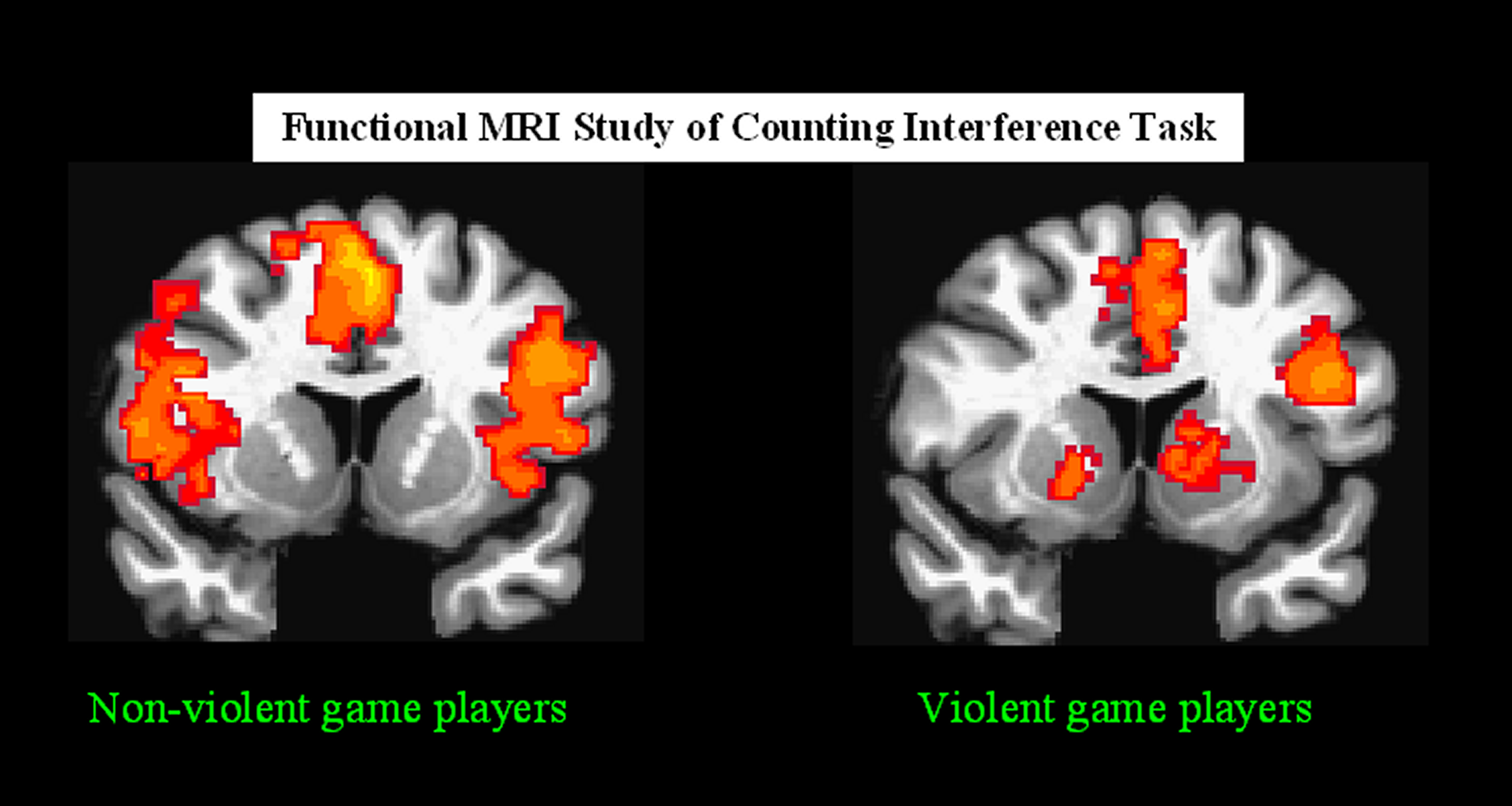 effects of aggressive video games in In recent years the video game industry has surpassed both the music and video industries in sales currently violent video games are among the most popular video games played by consumers, most specifically first-person shooters (fps) technological advancements in game play experience including.