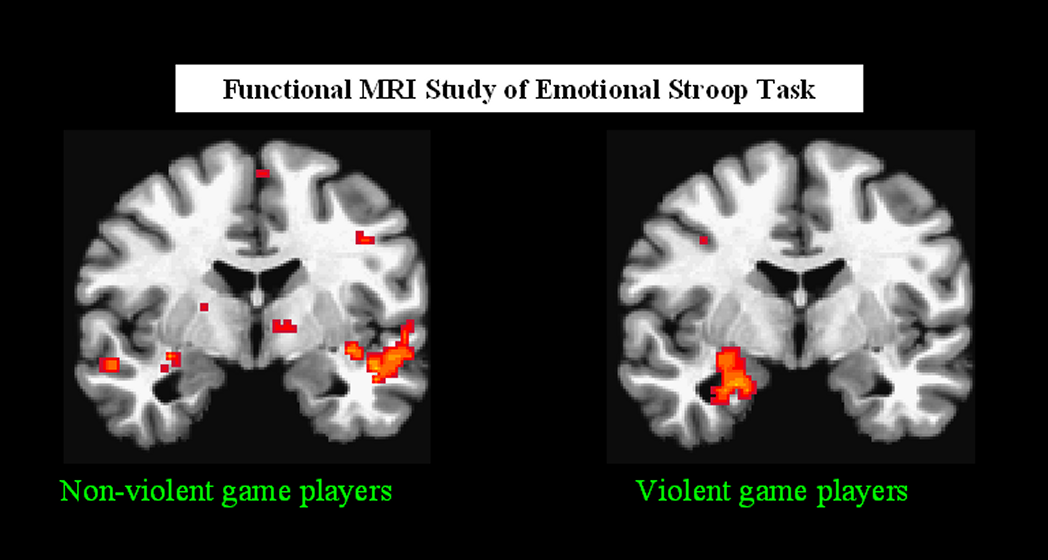 video gaming effects on adolescents brain The influence of video games on adolescent brain activity video games, brain training, media effects thank you for your genuine interest in the gaming aspect.