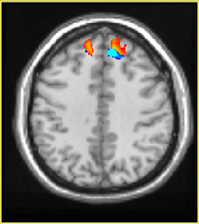Contagious Yawning and the Frontal Lobe: An fMRI Study