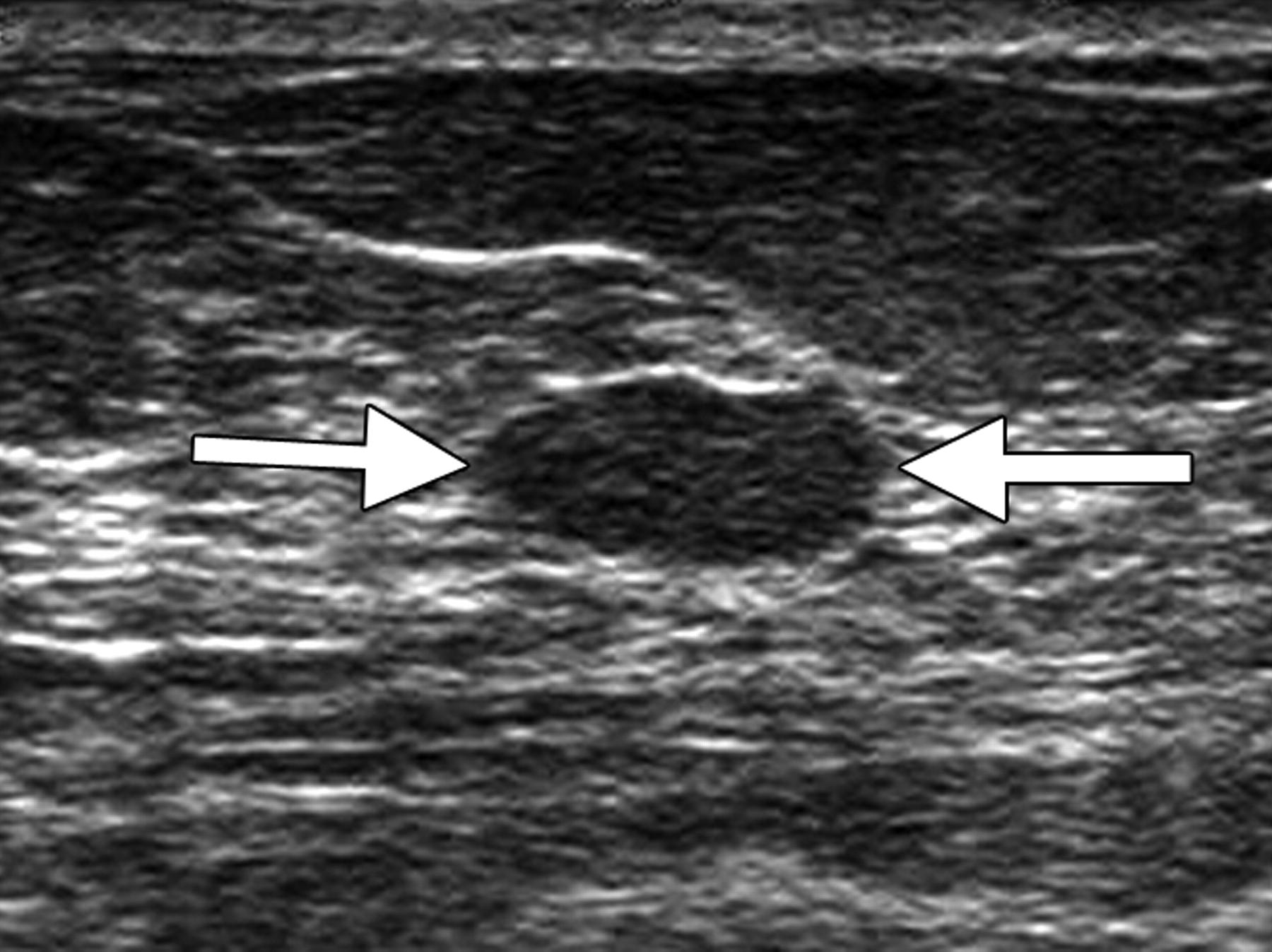 Breast Applications Sam S Ultrasound Program