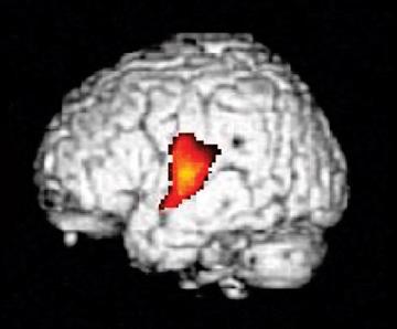 Childhood Lead Exposure Causes Permanent Brain Damage