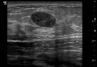 Targeted Breast Ultrasound Can Reduce Biopsies For Women Under Forty