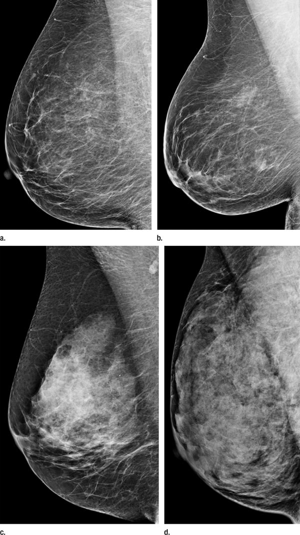 Breasts are heterogeneously dense