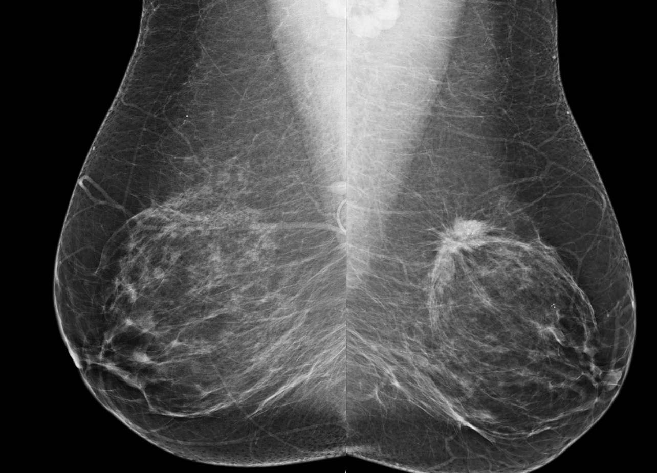 Risk Based Screening Misses Breast Cancers In Women In