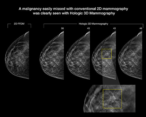 breast tomosynthesis a breast cancer screening tool A new study shows breast tomosynthesis (3d mammogram) improves breast cancer detection and reduces recall rates for high-risk women.